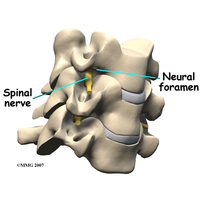 Physical Therapy in Bend for Cervical Artificial Replacement