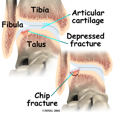 Physical Therapy in Asheville for Osteochondritis Dissecans