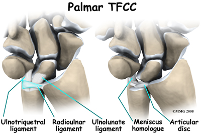 Triangular Fibrocartilage Complex Injuries | Musculoskeletal Key | 267x400