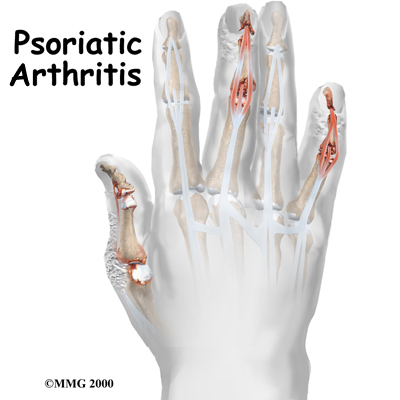 Physical Therapy In Colorado Springs For Ankle Pain Psoriatic Arthritis