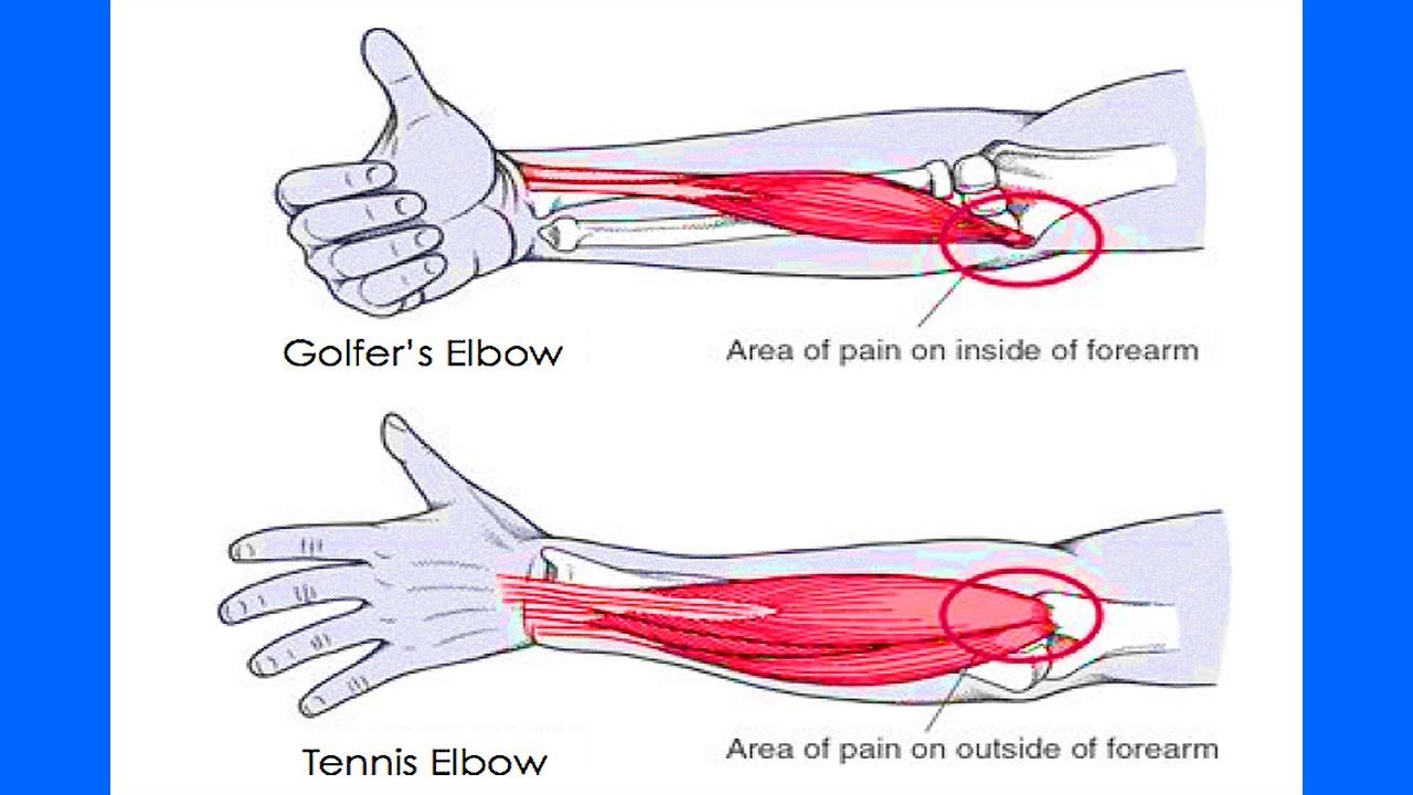 Fyzical Forest Grove Four Simple Tips For Tennis Elbow
