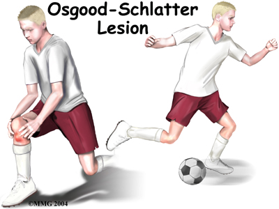 Physical Therapy In Louisville For Knee Osgood Schlatter