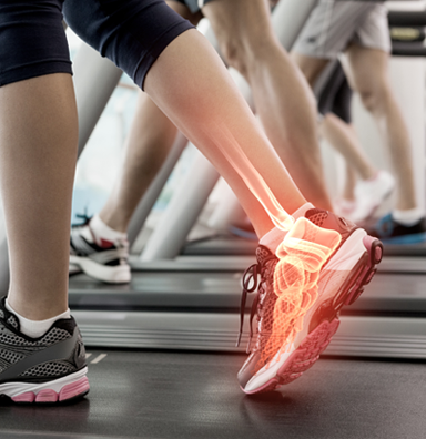 women on a treadmill with foot pain