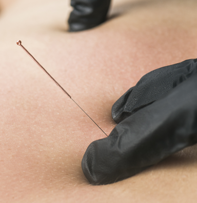 patient receiving dry needling