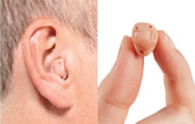 In-The-Ear
