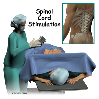 Physical Therapy in New Orleans for Pain Care Spinal Cord
