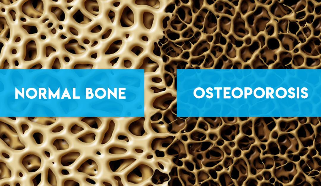 Improve Bone Health Naturally with Juvent Micro-impact Platform